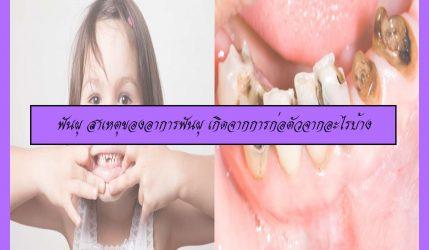 ฟันผุ สาเหตุของอาการฟันผุ เกิดจากการก่อตัวจากอะไรบ้าง