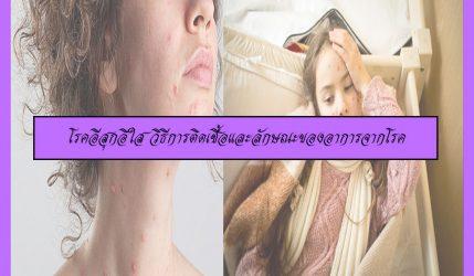 โรคอีสุกอีใส วิธีการติดเชื้อและลักษณะของอาการจากโรค